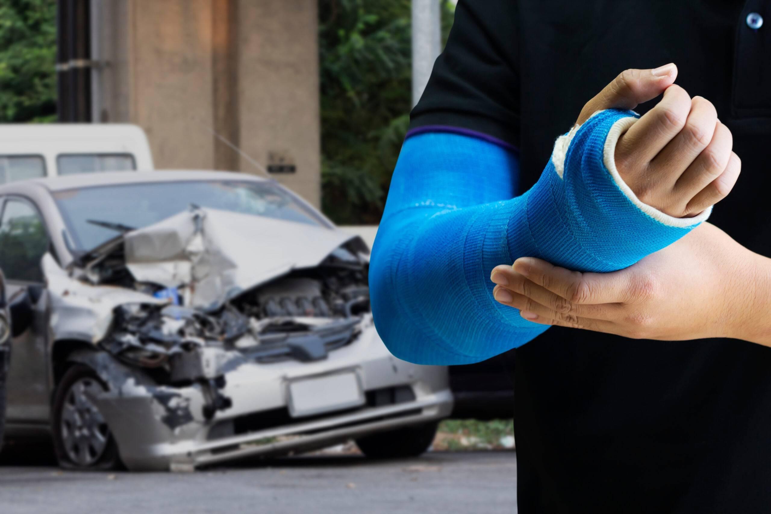 bone-fracture-auto-accident